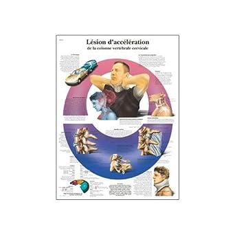 3B Scientific Lesion D'acceleration De La Colonne Vertebrale Cervicale