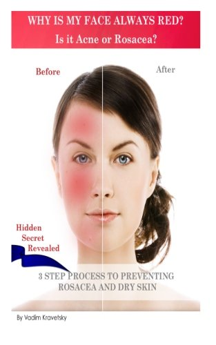 Why is my face always red? Is it Acne or Rosacea?: 3 step process to preventing Rosacea and Dry Skin