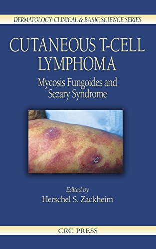 cutaneous-t-cell-lymphoma-mycosis-fungoides-and-sezary-syndrome-dermatology-clinical-basic-science