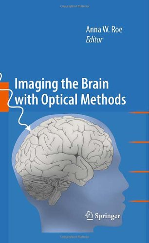 Imaging The Brain With Optical Methods