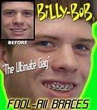 Billy Bob Braces Teeth Ugly Betty Novelty April Fools Gag Joke