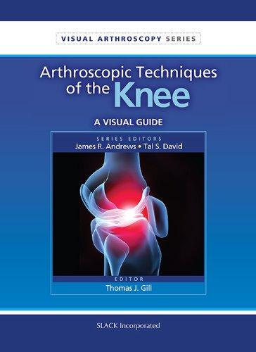 Arthroscopic Techniques Of The Knee: A Visual Guide (Visual Arthroscopy)