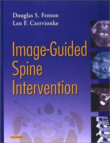 Image-Guided Spine Intervention