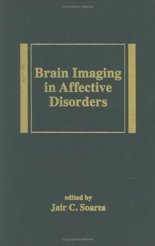 Brain Imaging in Affective Disorders (Medical Psychiatry Series)