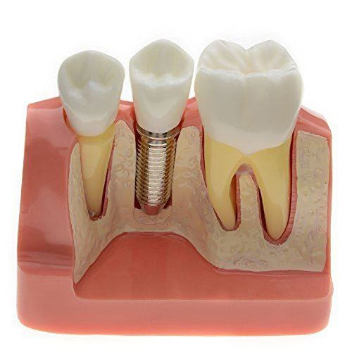 Careshine Dentist Dental Demonstration Teeth Model Implant Analysis Crown Bridge (Dental Implant Model compare prices)