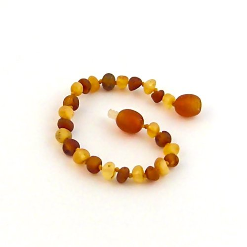 "5.5"" Baltic Amber Nutmeg & Lemondrop Bracelet"