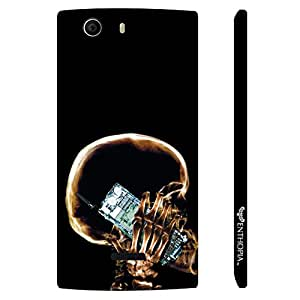 Micromax Canvas Nitro 2 E311 EVERY X-RAY VIEW designer mobile hard shell case by Enthopia