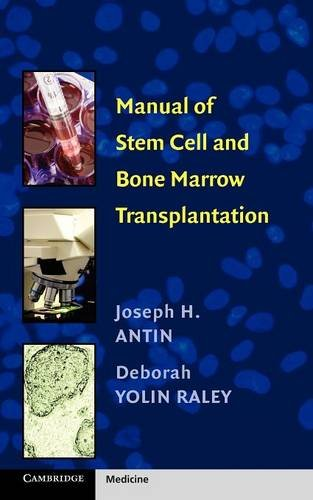 Manual of Stem Cell and Bone Marrow Transplantation Paperback (Cambridge Medicine (Paperback))