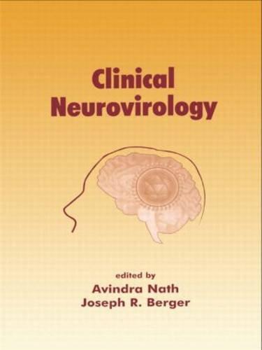 clinical-neurovirology