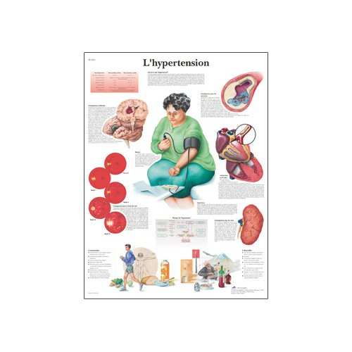 3B Scientific Glossy Paper Hypertension Anatomical Chart - 1