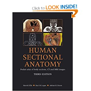Human Sectional Anatomy: Pocket Atlas of Body Sections, CT and MRI Images, 3rd Edition PDF