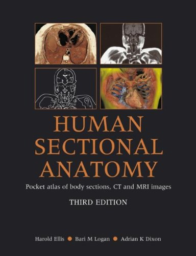 Human Sectional Anatomy: Pocket Atlas of Body Sections, CT and MRI Images