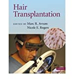 img - for [(Hair Transplantation)] [Author: Marc R. Avram] published on (December, 2009) book / textbook / text book