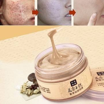 MEIKING Chinese Medicine Herbal Gromwell Mask Anti Acne Blackhead Remove Whitening Moisturizing by Completestore (Mite Remover compare prices)