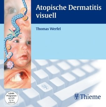 Atopische Dermatitis. CD-ROM. Windows 2000/XP. visuell