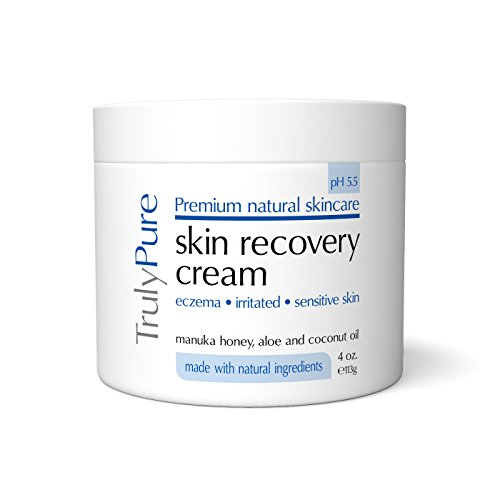 Rosacea Natural Treatment Coconut Oil
