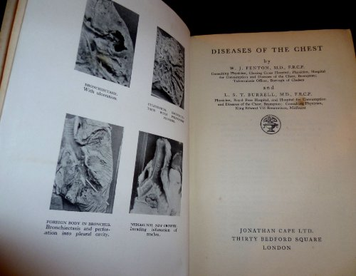Diseases Of The Chest By W.J. Fenton, First Edition, 1930
