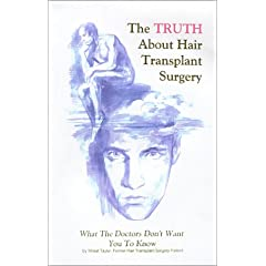 The Truth About Hair Transplant Surgery: What the Doctors Dont Want You to Know
