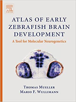 Atlas of Early Zebrafish Brain Development: A Tool for ...