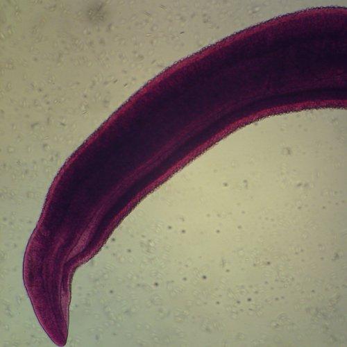 Schistosoma Mansoni Male, W.M. Microscope Slide