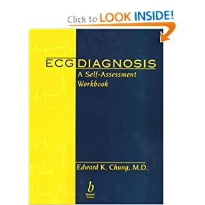 ECG Diagnosis  A Self-Assessment Workbook Free Download 41NWFT0DMNL._BO2,204,203,200_PIsitb-sticker-arrow-click,TopRight,35,-76_AA300_SH20_OU01_