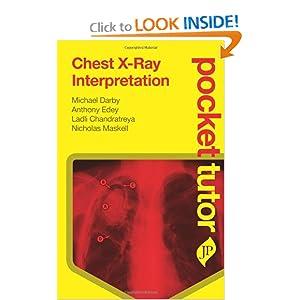 Chest X-Ray Interpretation (Pocket Tutor)