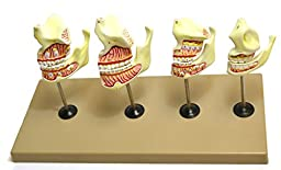 Eisco Labs Dentition Model - 4 Stages; 8 Pieces