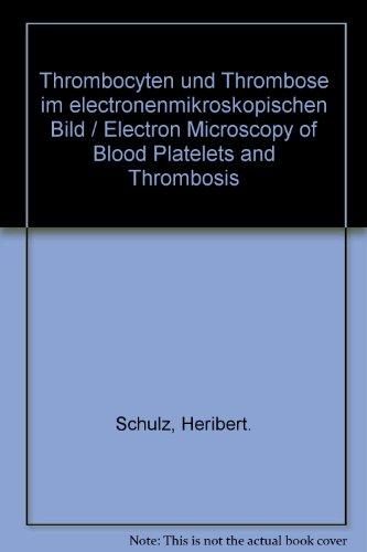 Thrombocyten Und Thrombose Im Electronenmikroskopischen Bild / Electron Microscopy Of Blood Platelets And Thrombosis