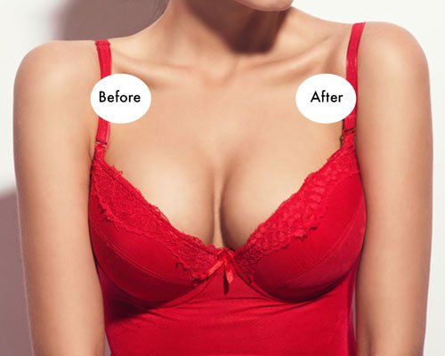 f3c8c5c9b14 Perforated Silicone Bra Insert Breast Enhancer Push Up Pads Chicken Cutlets  Bra  24.00