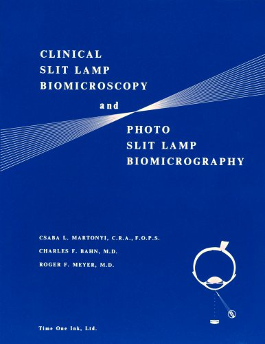 Clinical Slit Lamp Biomicroscopy And Photo Slit Lamp Biomicrography