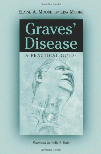 Graves' Disease: A Practical Guide front-116767