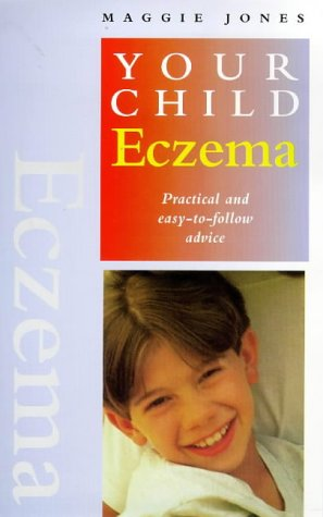 Eczema On Infant front-315513