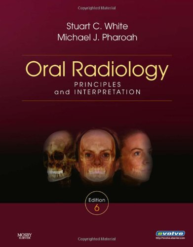 Oral Radiology: Principles and Interpretation