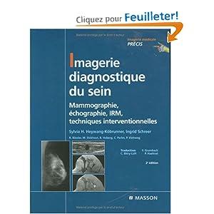 Imagerie diagnostique du sein mammographie chographie irm techniques - 200 euros en livres ...