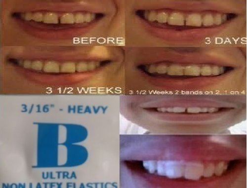 ORTHODONTIC GAP TEETH BANDS 3/16 HEAVY 100 BANDS