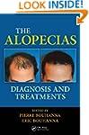 The Alopecias: Diagnosis and Treatments