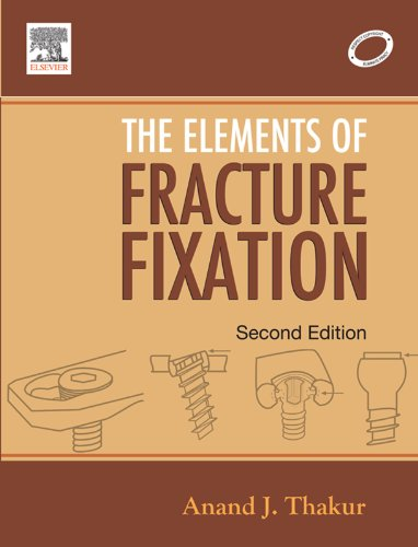 Elements of Fracture Fixation, by Anand J. Thakur