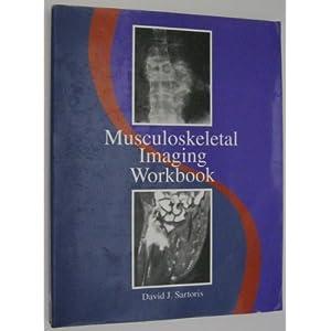 Musculoskeletal Imaging Workbook