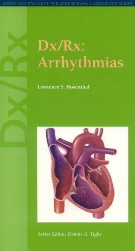 Dx/Rx: Arrhythmias (Dx/Rx Cardiology Series)