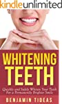 Whitening Teeth: Quickly and Safely W...