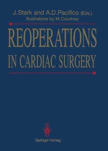 Reoperations in Cardiac Surgery