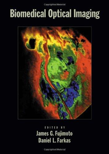 Biomedical Optical Imaging