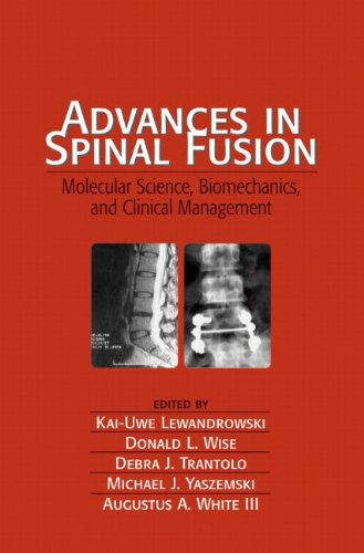Advances in Spinal Fusion: Molecular Science, BioMechanics, and Clinical Management