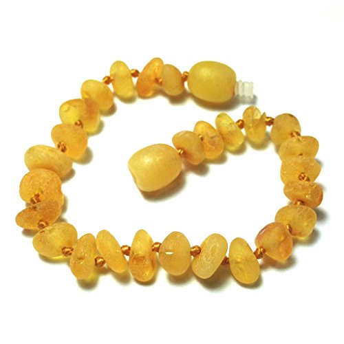 "Hazelaid (TM) 5.5"" Baltic Amber Lemondrop Bracelet"