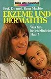img - for Ekzeme und Dermatitis. Was tun bei entz ndeter Haut? book / textbook / text book