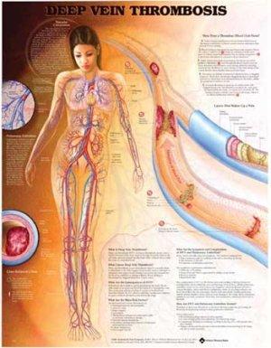AWW 9781587797316 Deep Vein Thrombosis Chart Plastic: Science Lab