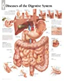 Diseases-of-Digestive-System-chart-Wall-Chart