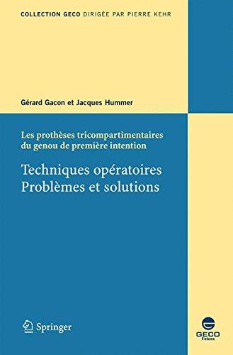 techniques-operatoires-problemes-et-solutions-les-protheses-tricompartimentaires-du-genou-de-premier