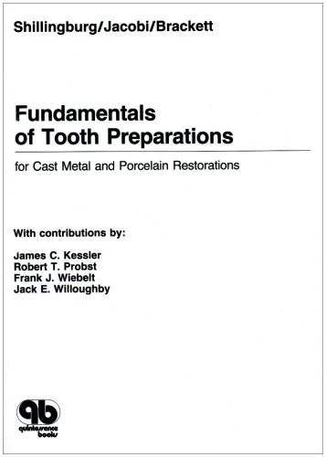 Fundamentals of Tooth Preparations for Cast Metal and...
