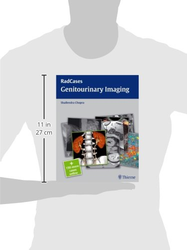 Genitourinary Imaging: RadCases